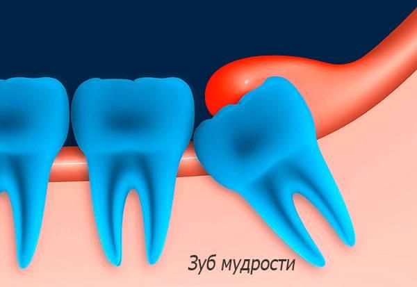 На картинке схематично показан сложно прорезывающийся зуб мудрости.