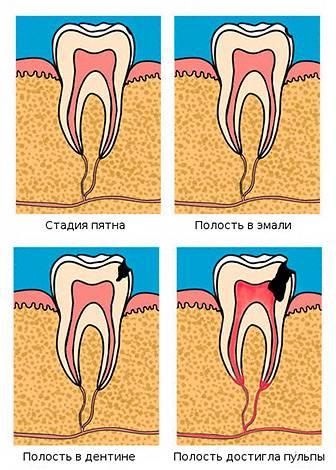 Стадии развития кариеса: от пятна на зубе до поражения пульповой камеры.