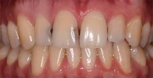 Кариес передних зубов фото до и после лечения