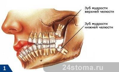 Схема расположения прорезывающихся зубов мудрости