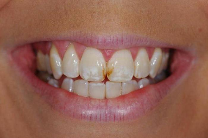болит ухо зубы голова с правой стороны