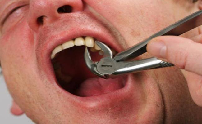 Болит голова и зубы с правой стороны