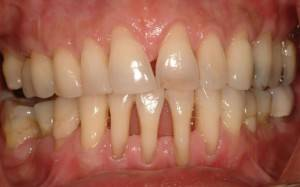 Лекарство для болезни десен — Зубы
