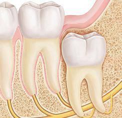 зуб мудрости как снять боль