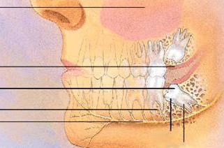 лезет зуб мудрости как снять боль