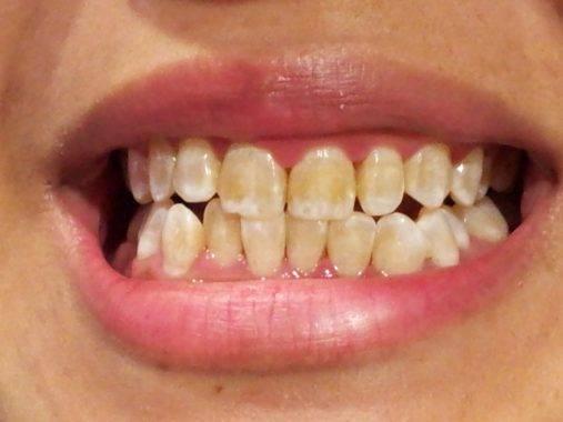 желтые зуба из-за отсутствия гигиены