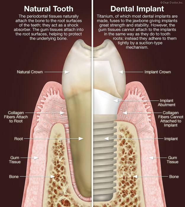 отдаленные результаты имплантации зубов
