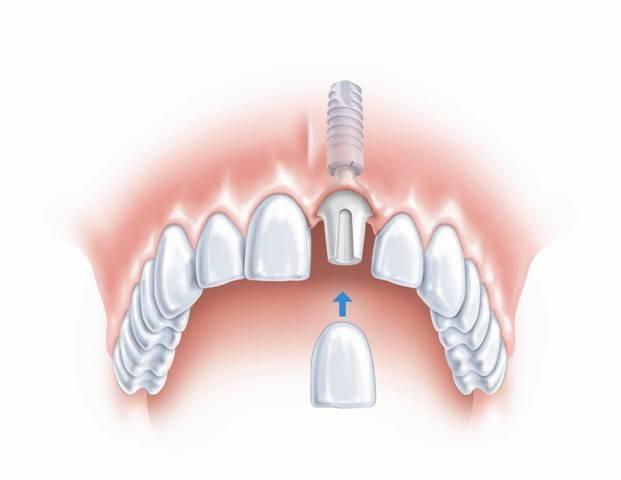 имплантация зубов противопоказания и возможные осложнения отзывы