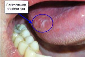 Лейкоплакия