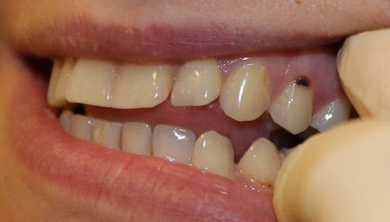 тошнота после лечения зуба