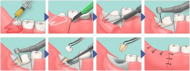 процесс сложного удаления зуба мудрости