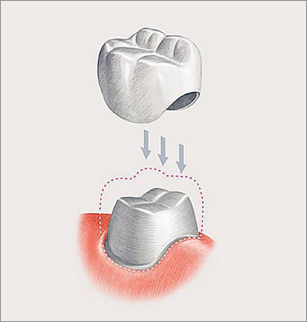 На картинке схематично показана классическая зубная коронка
