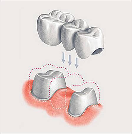 А так выглядит мостовидный протез - в данном случае под коронки приходится обрабатывать соседние зубы