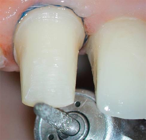 В ходе обточки зуба под коронку он может сильно нагреваться, что может привести к некрозу пульпы