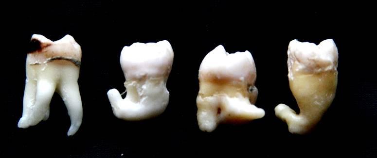 Когда нужно пить обезболивающее после удаления зуба