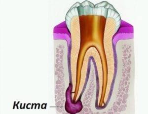 Образование кисты в корне зуба
