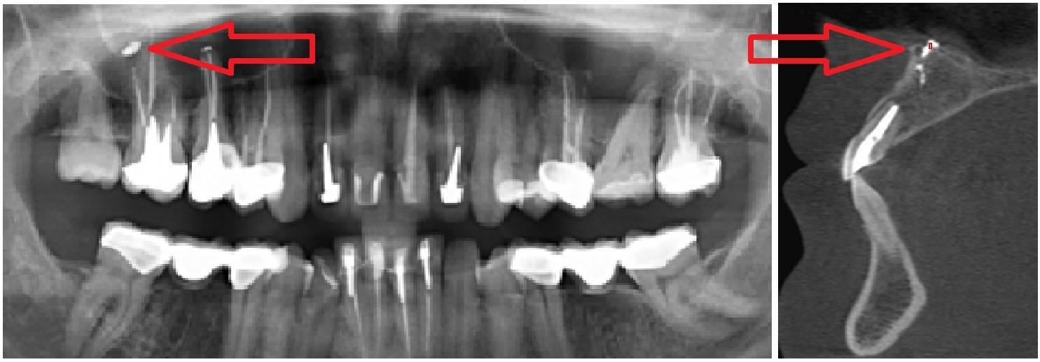 После зубной анестезии болит челюсть