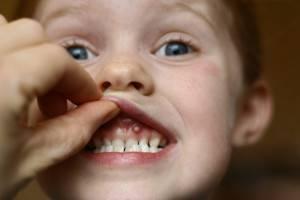 У ребенка прыщ на десне — Зубы