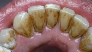 Зуб черный внутри — Болезни полости рта