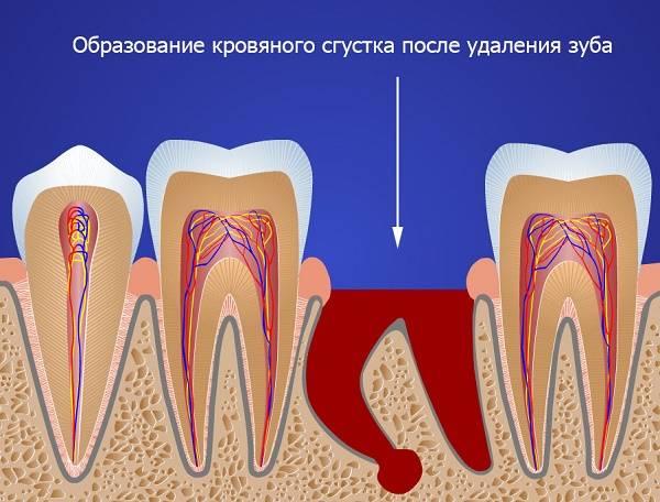 появление кровяного сгустка после удаления зуба