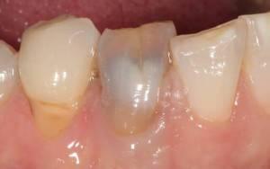 Мертвый зуб во рту