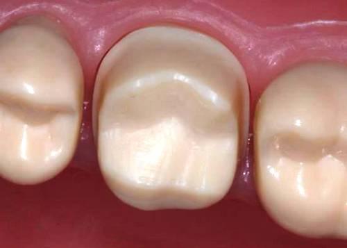 Обточка зубов под металлокерамику
