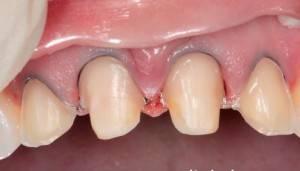 Фото: Обточенные с уступом передние зубы