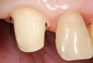 Фото: Правильно обточенный зуб