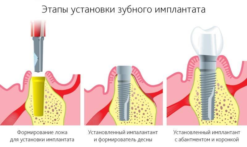 как проходит имплантация всех зубов