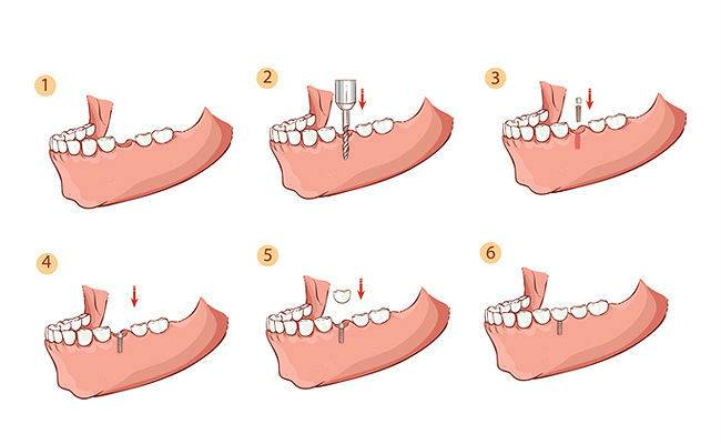 Имплантация на разных этапах