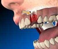 Рана после удаления зуба
