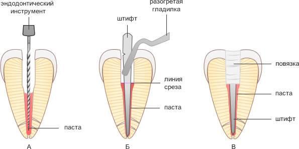 Аллергия на пломбировочный материал каналов