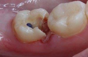 мышьяк на зубе