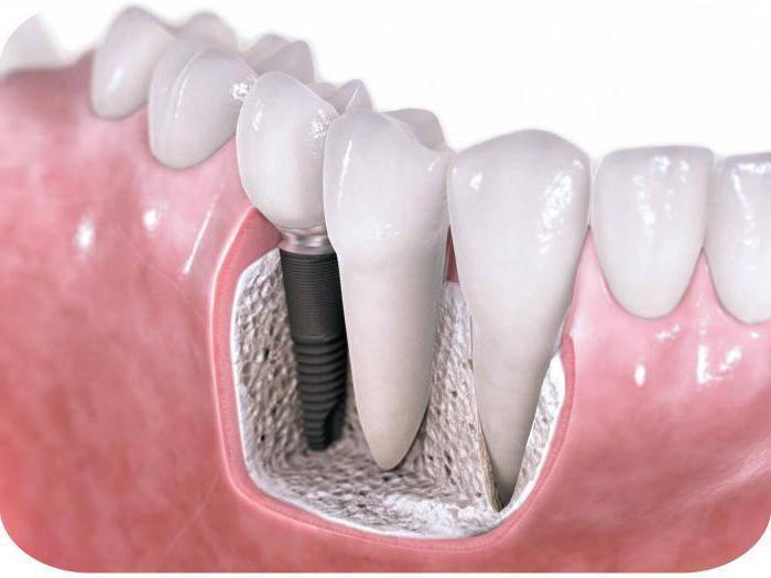 синус лифтинг использование при имплантации зубов послеоперационный период
