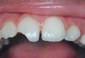 Почему зубы отламываются