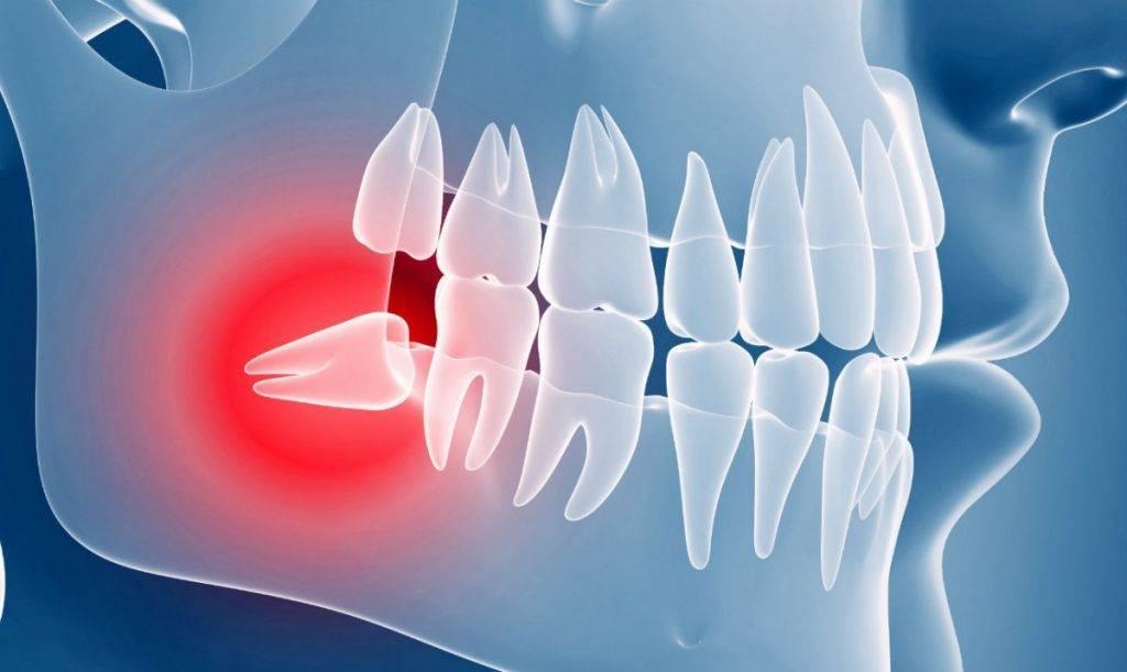 Все о дистопированных и ретинированных зубах