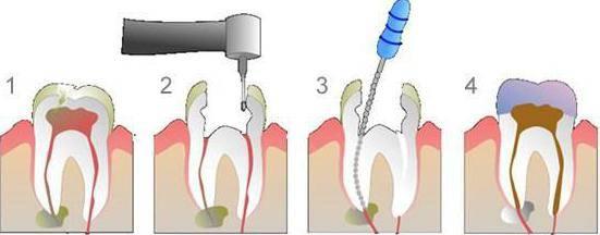 может ли болеть зуб без нерва