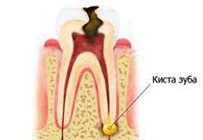 болит зуб без нерва при накусывании