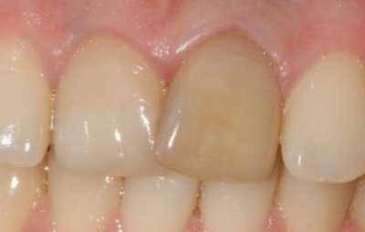 Karies s vnutrennej storony zuba