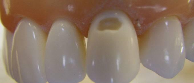 кариес на шейке зуба