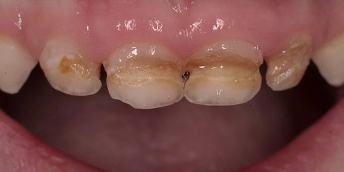 запущенный кариес шейки зубов