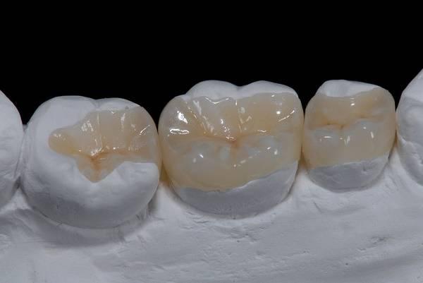 что представляют собой зубные вкладки