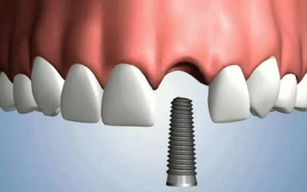 как заместить утраченный зуб