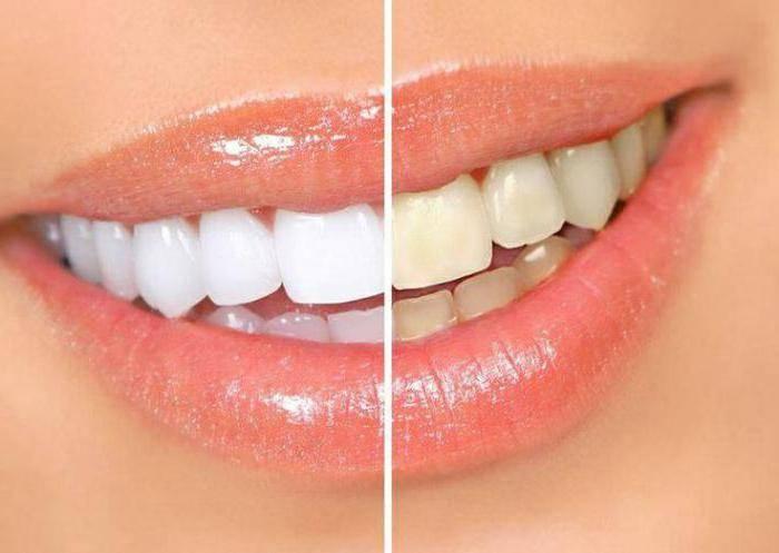 после лечения зубов