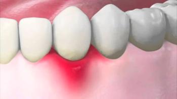Солкосерил гель для десен инструкция по применению — Зубы