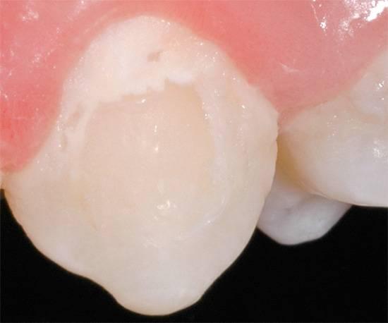 На фотографии показан пример зуба с кариесом в стадии пятна.