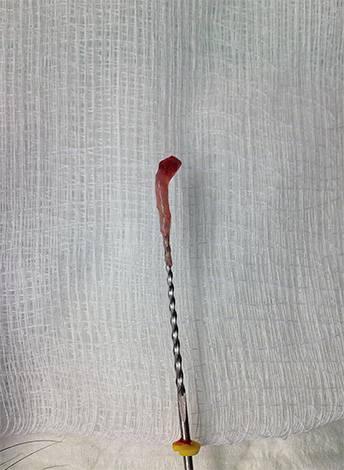 Пульпа, извлеченная из корневого канала зуба