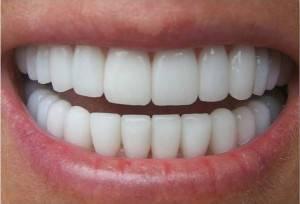 Можно ли ставить виниры на кривые зубы — Зубы