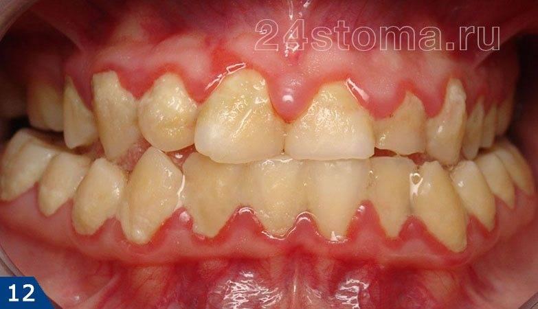 Гингивит: краевая десна воспалена, зубодесневые сососочки красные отечные, обилие микробного зубного налета у шеек зубов