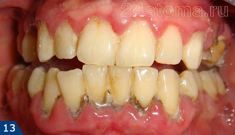 Пародонтит: обилие микробного налета и твердых зубных отложений, краевая десна красная, отечная, атрофия кости в области нижних зубов.